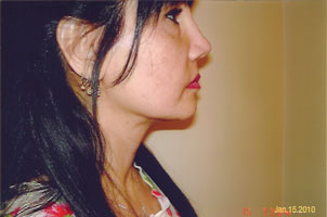 chin liposuction after