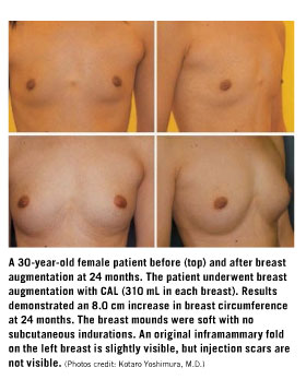 Breast implant featured article examples
